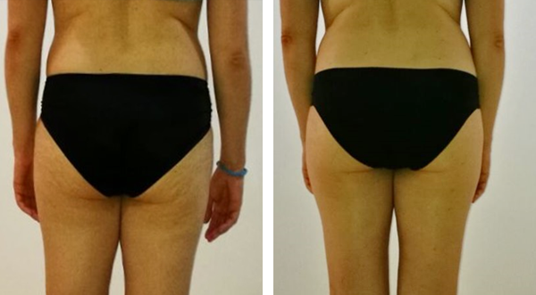 before and after photo of back of woman's thighs