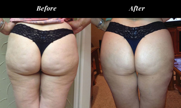 before after photo for cellulite reduction on back of thighs and buttocks
