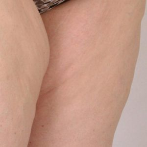 thigh showing cellulite reduction